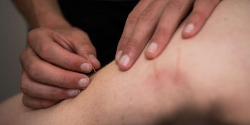 5 Things You Need To Know About Dry Needling
