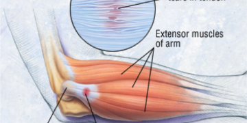 Tennis Elbow – in the non-tennis playing individual!